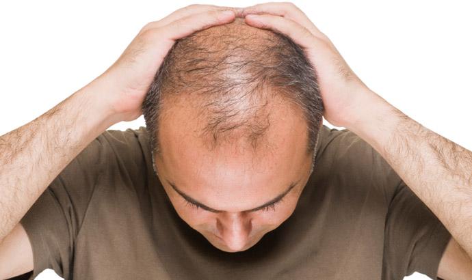 esps-queda-de-cabelo-690x410